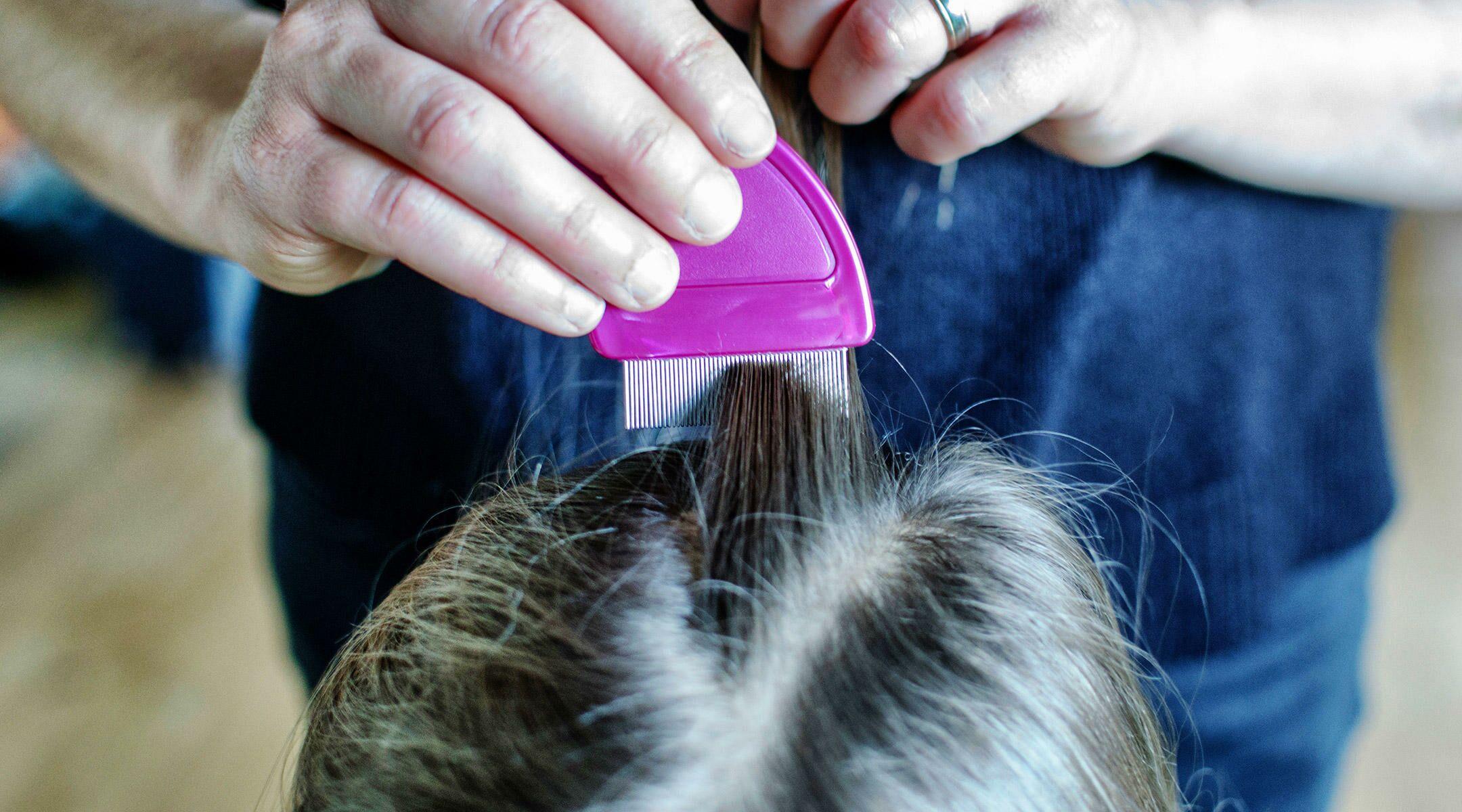 Head Lice 101 Symptomstreatment Prevention