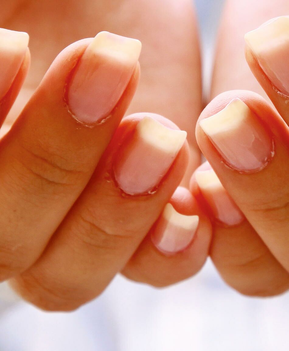 Numb or Tingling Hands or Feet During Pregnancy