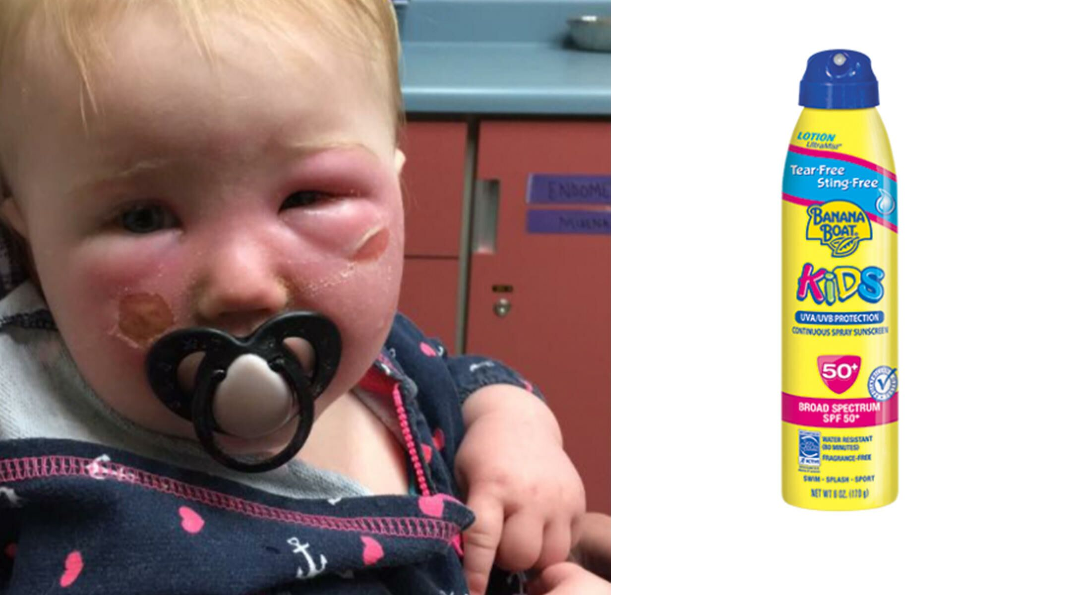 This Baby's Burns Warn Against - 138.6KB