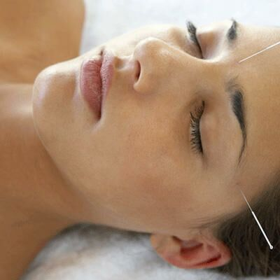 The Latest Scoop on How Acupuncture Could Help You Get Pregnant